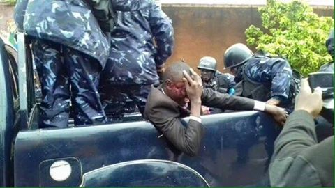 Police rushes injured Delta TV Journalist to hospital after the scuffle between Lukwago and police.